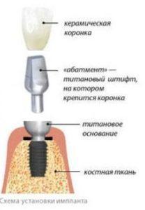 Схема установки зубного импланта