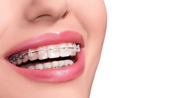 Прием ортодонта в клинике на Свердлова