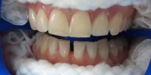 До процедуры отбеливания зубов