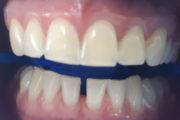 Зубы после отбеливания Zoom 4